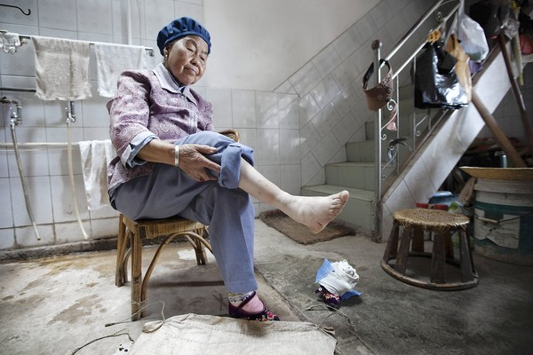 Liuyi is home to some of the last practitioners of foot binding in China.
